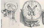 Leonardo da Vinci (1452 - 1519), desenhou de modo certo, pela primeira vez, os ventrículos do cérebro, a partir de 1504. <br><br> Palavras-chave: Leonardo da Vinci, cérebro, ventrículo, ciência, estética